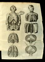 Dissection of the thorax; ribs and diaphragm