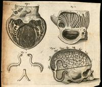 Heart and papillary muscles, carotid and vertebral arteries, and skull and brain, with cranial sinuses