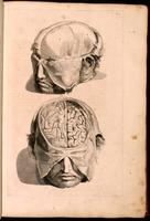 Dissection of the head and brain