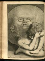 Infant with hydrocephalus