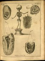 Fetal skeleton, placenta and embryo