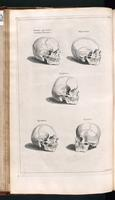Skulls, normal and abnormal