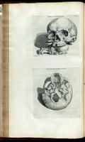 Skull of a human and a dog