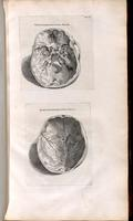 Base of skull, skullcap