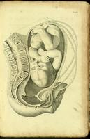 Gravid uterus, fetus during labour