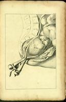 Delivery of the fetus using forceps