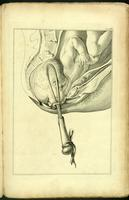 Delivery of the fetus