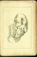 Delivery of the fetus from an abnormal pelvis