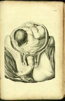 Fetus in transverse lie, arm presenting