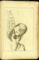 Delivery of the separated fetal head using crotchet, breech presentation