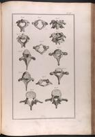 Vertebrae; atlas, axis, thoracic and lumbar vertebrae