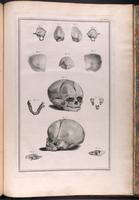Fetal skull, bones of the fetal skull