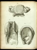 Diseased uterus and cervix, and bladder.