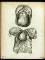Prolapsed uterus, and inverted uterus