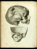 Skull with neoplasms