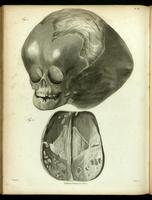 Skull of a child, hydrocephalus