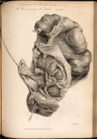 Dissection of the perineal region following unsuccessful lithotomy