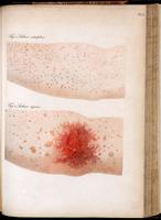 Eruptions on the arm