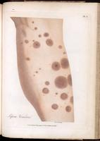 Lesions on the leg