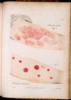 Roseola; rash of the arm