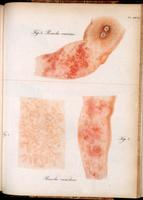 Roseaola, caused by vaccine, and by smallpox