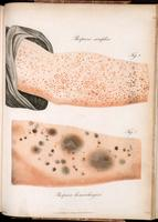 Purpura, shown on the arm