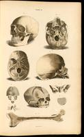 Skull, bones of the skull, femur