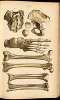 Pelvic bones, sacrum, bones of the leg