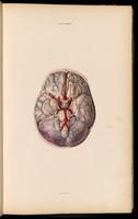 Brain, cerebellum, cranial nerves and circle of Willis