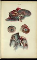 Dissection of the eyes and skull, with optic and trigeminal nerves