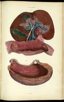 Liver, gallbladder, hepatic artery and portal system, and duodenum; dissection of the stomach