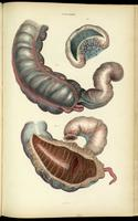 Ileum, colon and appendix
