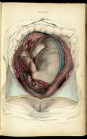 Gravid uterus with fetus