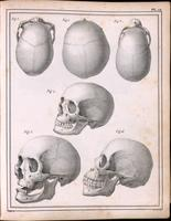 Skulls; cauasoid, negroid and mongoloid