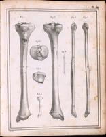 Tibia and fibula of an adult and a fetus