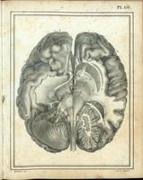 Dissection of the brain