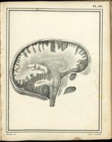 Dissection of the brain with skull