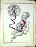 Fetus, umbilical cord, and placenta; fetal circulation