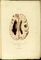 Brain cyst and intracranial hemorrhage