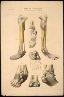 Foot and leg abnormalities, clubfoot