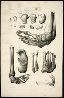 Leg and foot bones, clubfoot