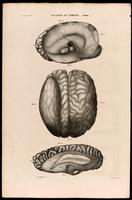 Brain malformations, cysts, possible hydrocephalus or hydranencephaly