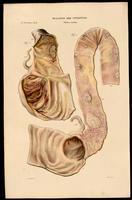 Intestines affected by cholera