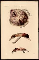 Diseased placenta