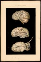 Congenital brain abnormalities; atrophy of the gyri