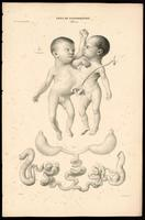 Conjoined twins, with partially shared gastrointestinal system