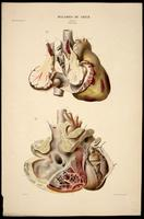 Heart neoplasms