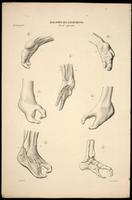 Hand and foot deformities; lobster claw or split hand/split foot deformity