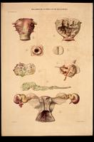 Neoplasms of the uterus and Fallopian tubes, tuberculosis affected the uterus