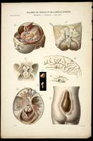 Microcephaly, anencephaly and hydrocephaly; spina bifida